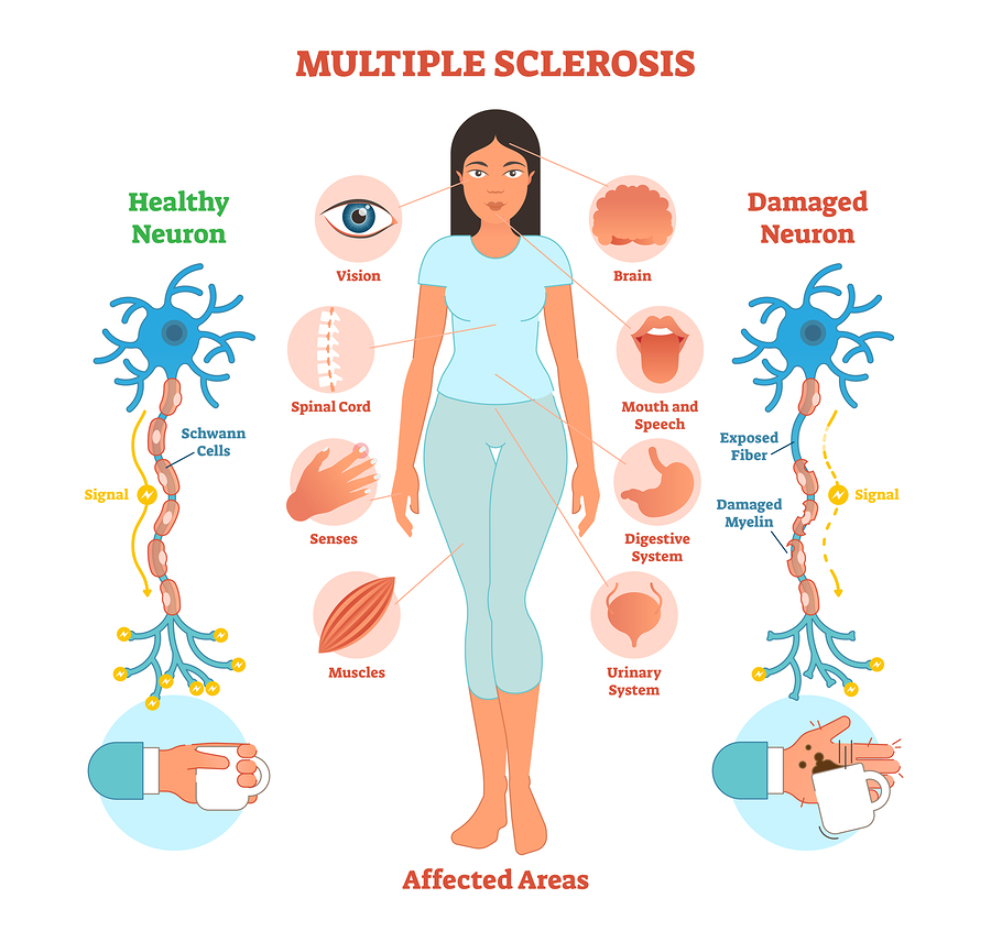 Multiple Sclerosis does not Discriminate