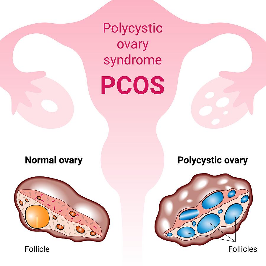 Let us talk about PCOS