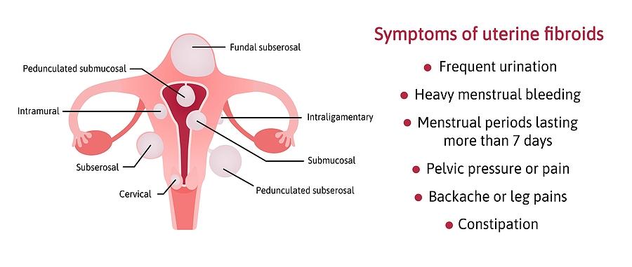 Uterine Fibroids – What do I need to do?